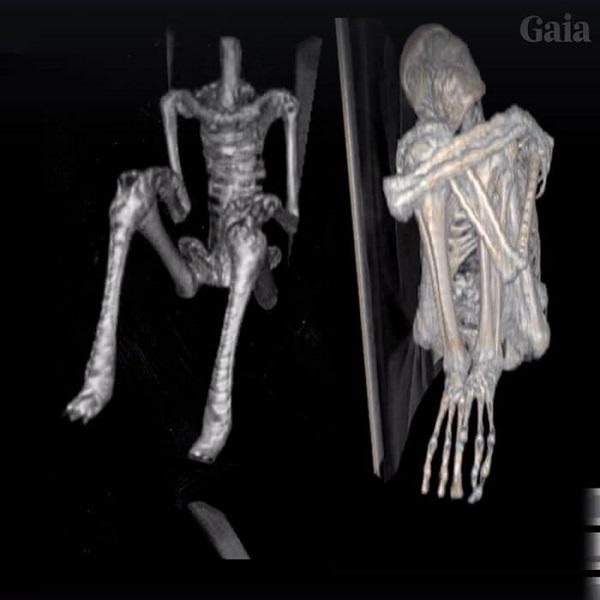 radiografia mummia aliena